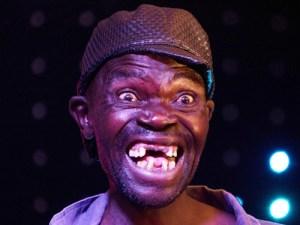 Theo AP, ông Mison Sere (ảnh) đã giành phần thưởng 500 USD nhờ hàm răng lởm chởm và nụ cười kinh dị.